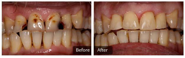 Hooie Dental in Crossville